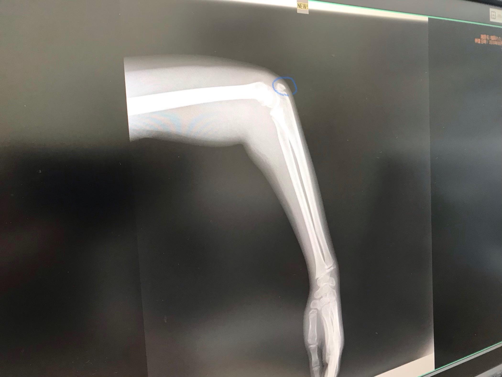 怪我のレントゲン